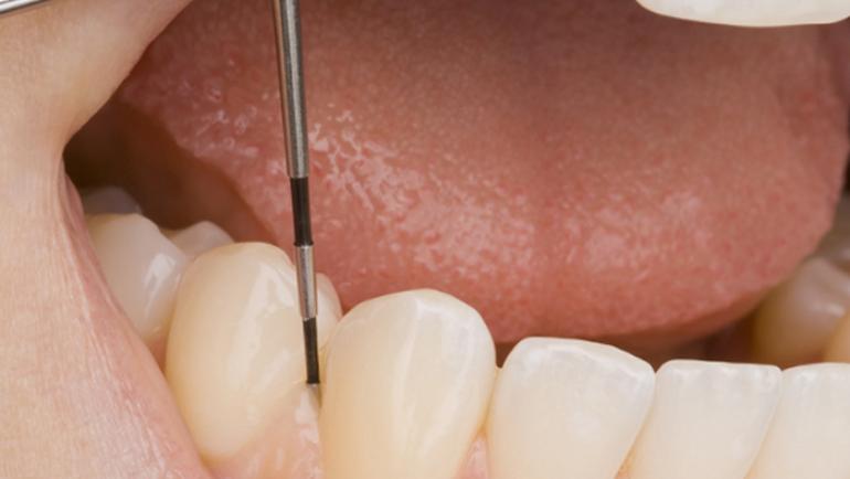 Periodontologia