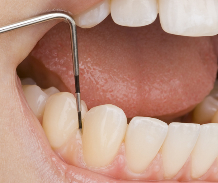 Periodontologia.png